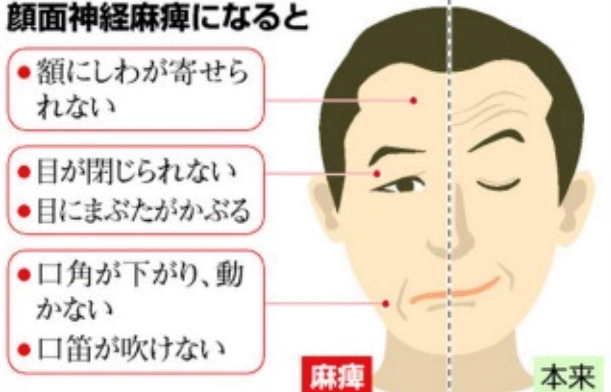 ②ハント症候群. 帯状疱疹ヘルペスウイルスに感染して起こる顔面神経麻痺。