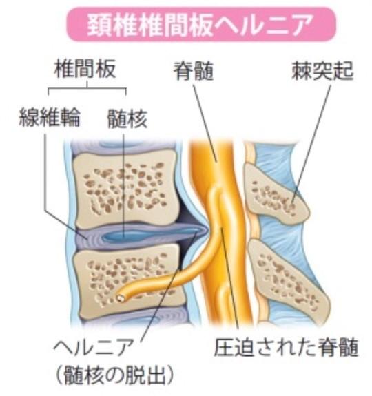 治癒 自然 頚椎 ヘルニア
